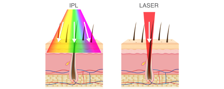 IPL a laser